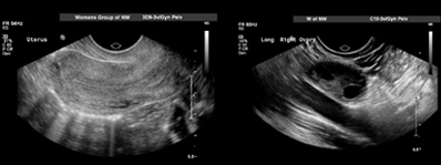 Image of a health Gynecological Ultrasound
